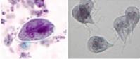 Figure 11. Giardia cyst and trophozoites