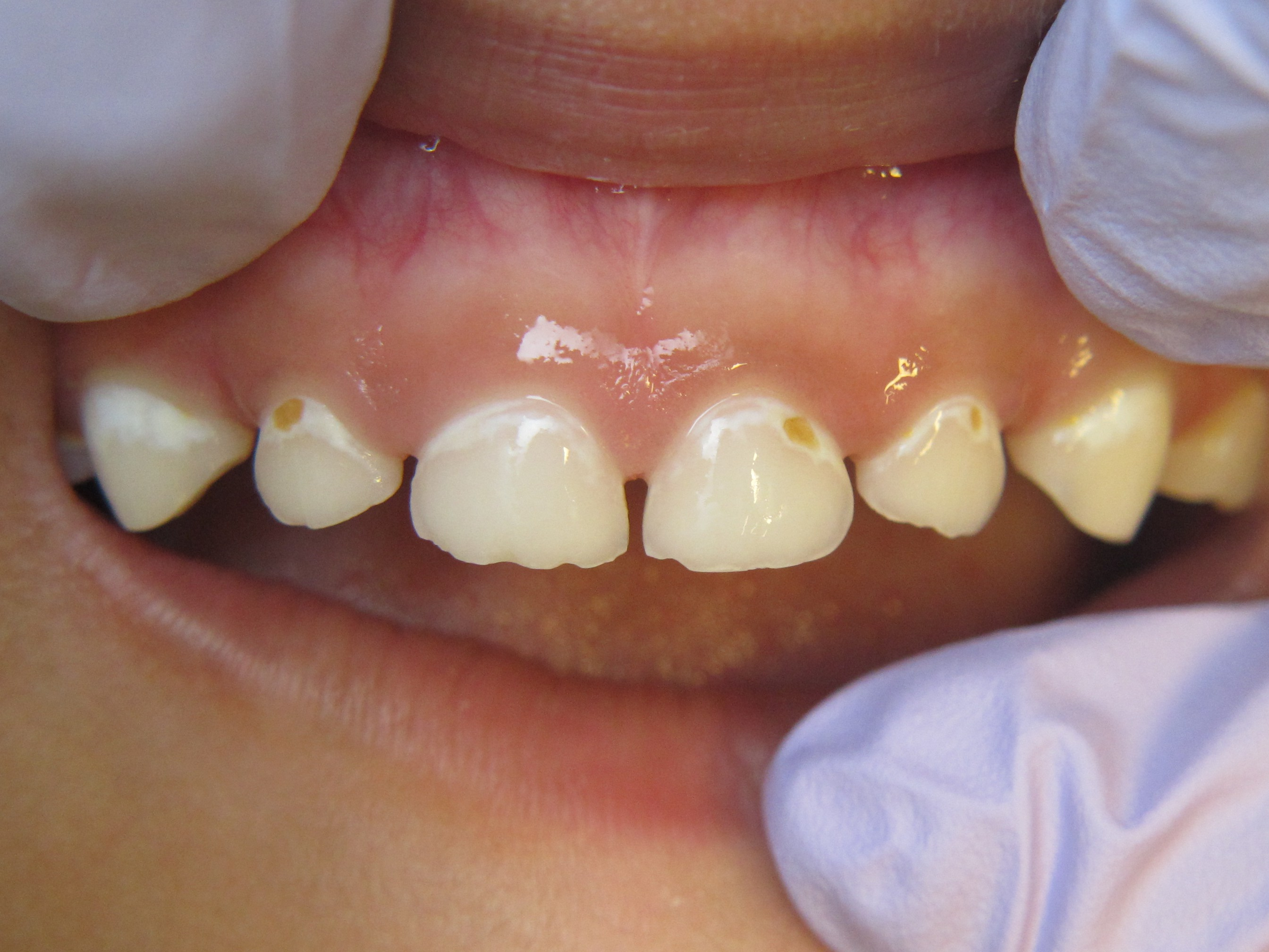 Figure 4. Moderate dental disease