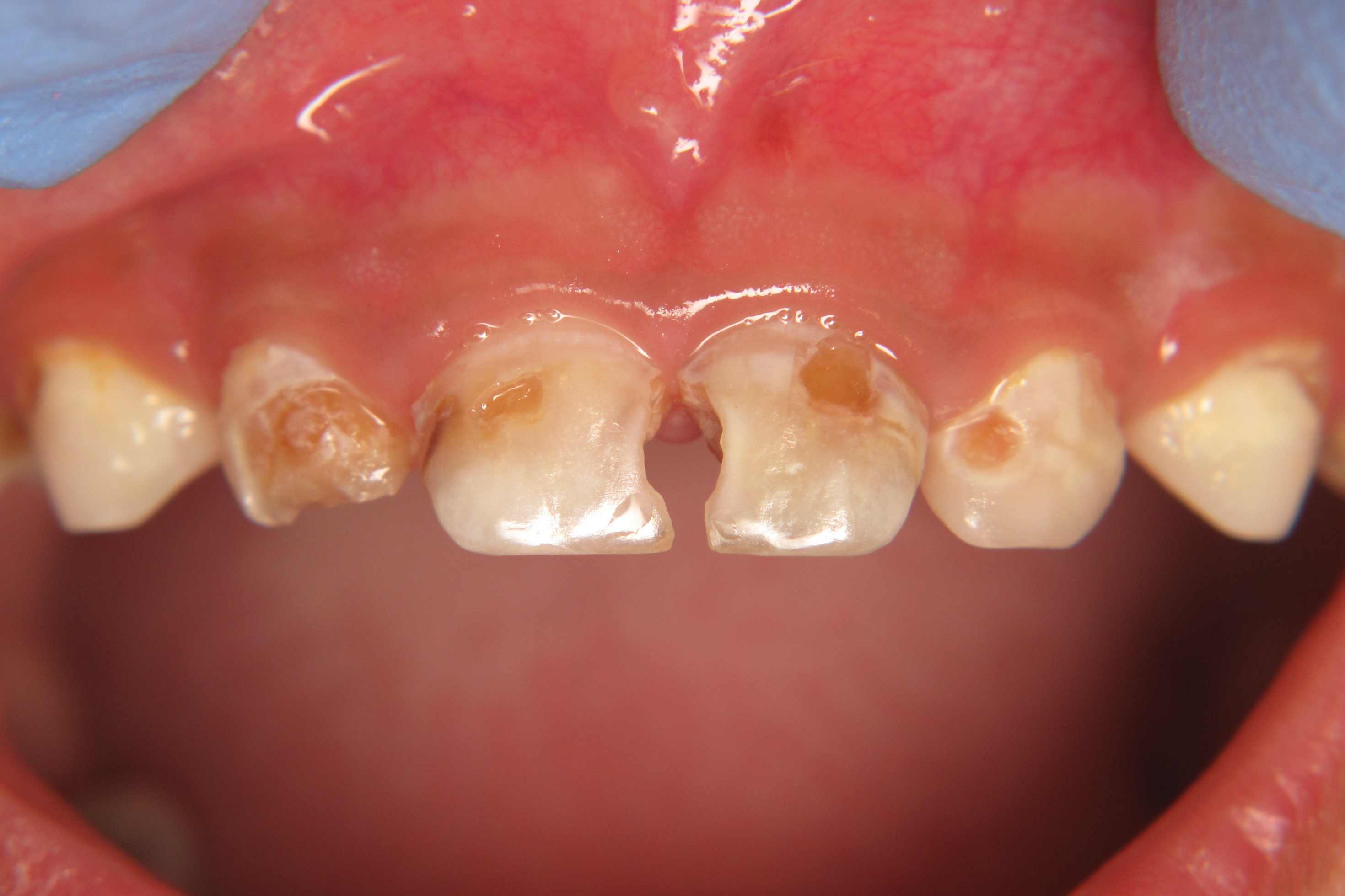 Figure 5.  Severe dental disease